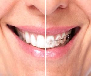 Benfits orthodontics
