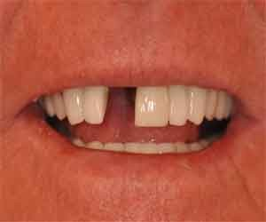 without dental implants