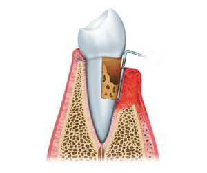 Periodontal Treatment at Behrens Dental Practice