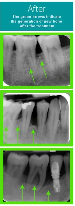 After Periodontal Treatment at Behrens