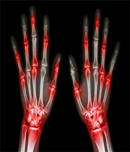 arthritis link to periodontal disease
