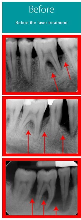 Before Periodontal Laser Treatment at Behrens