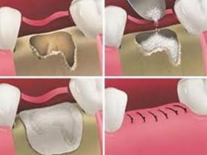 repairing gums