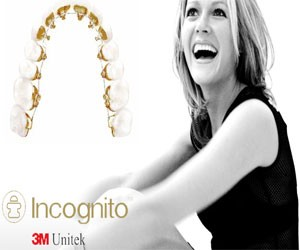 Incognito Braces