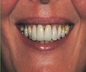 periodontal disease care south kensington