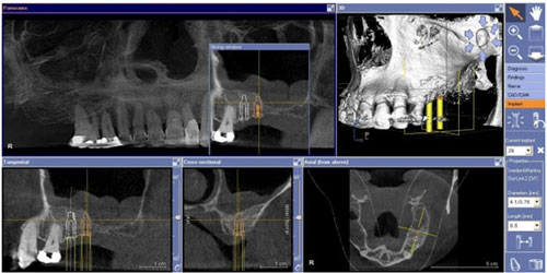 Scan Dental Implants Behrens London