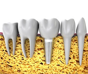 single tooth dental implants south kensington
