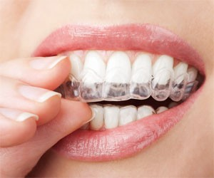 Clear Braces Kensington at Behrens Dental Practice