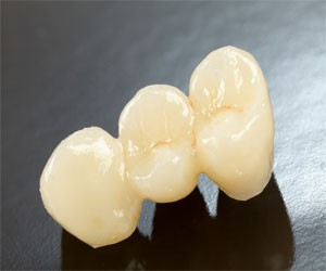 dental crowns and bridges.jpg