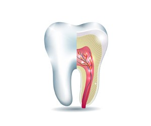 root canal london kensington