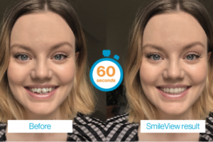 See what Your Teeth Would Look Like In 60 Seconds